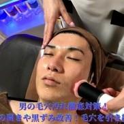 男の毛穴汚れ徹底対策! 黒ずみ改善!毛穴を引き締め! 美意識高いメンズ注目のハイドラフェイシャル